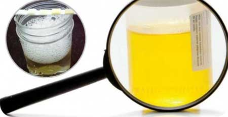 Причины повышения белка в моче