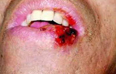 Симптомы цитомегаловирусной инфекции у взрослых, фото 1