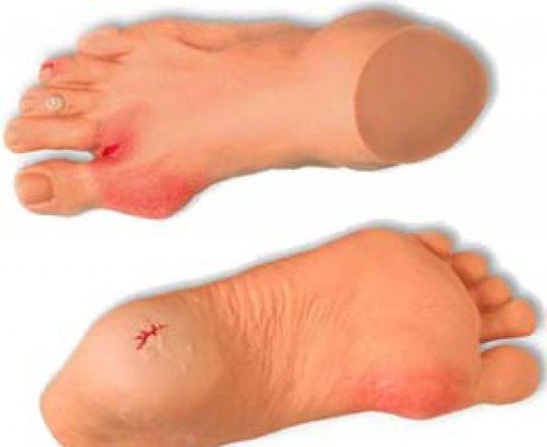 Уход за ногами для диабетиков