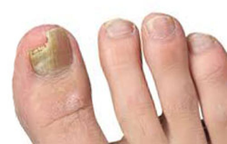 При какой температуре погибают грибки ногтей