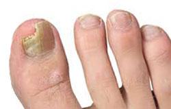 Стадии развития грибка ногтей на ногах