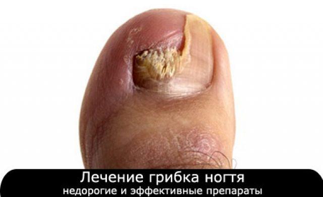 Лечение грибка ногтей на ногах керосином