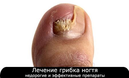Ногтевой грибок