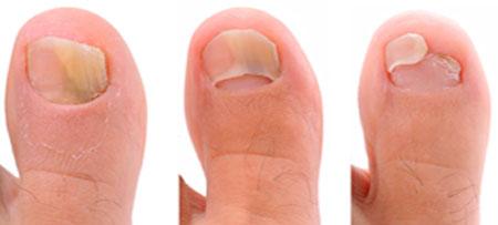 стадии развития b симптомы грибкового поражения ногтя