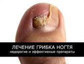 Лечение грибка ногтей: недорогие, но эффективные препараты