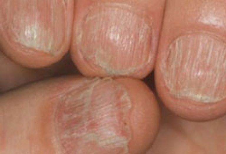 Фото грибка ногтей у основания