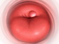 Симптомы кисты на шейке матки