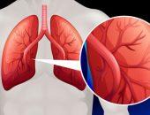 Симптомы и степени легочной гипертензии
