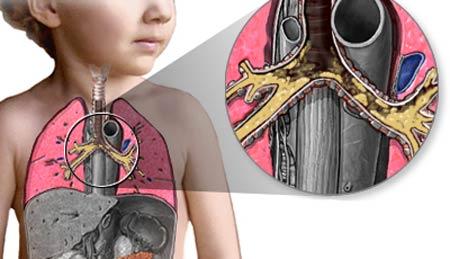 При поражении желез дыхательной системы
