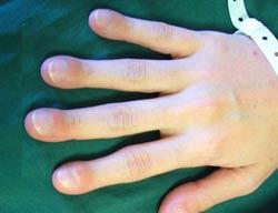 Симптомы муковисцидоза у детей