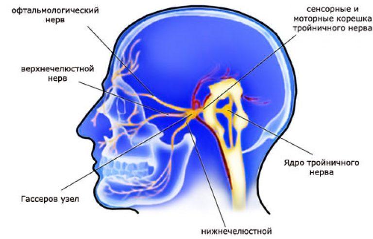 Лечение невралгии тройничного нерва в домашних условиях 78