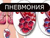 Пневмония у взрослых: Симптомы и лечение