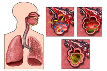 Пневмония, что это такое?