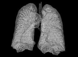 осложнения пневмосклероза легких