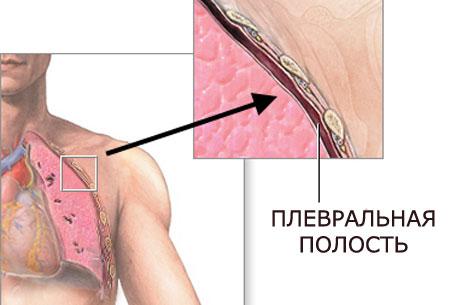 попадание воздуха в плевральную полость, фото 2
