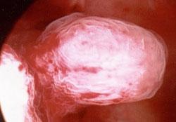 Лечение полипов матки