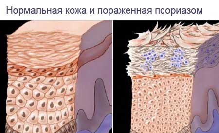 Мазь от псориаза