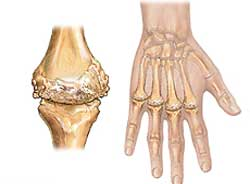Изображение - Ревматоидные заболевания суставов ra-1