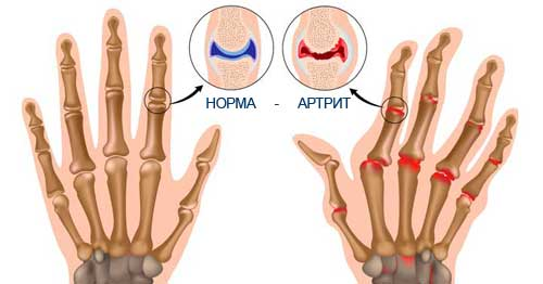 Изображение - Ревматоидные заболевания суставов ra-2