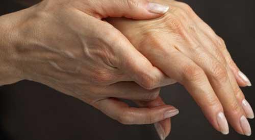 Изображение - Ревматоидные заболевания суставов ra3