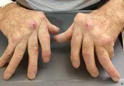 Изображение - Ревматоидные заболевания суставов ra5