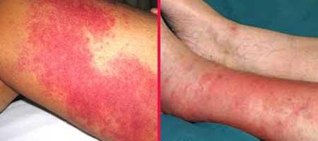 Как лечить больной ноготь на ноге
