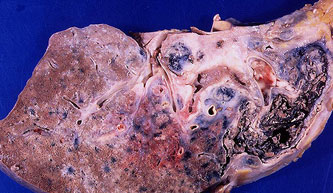 Симптомы и признаки саркоидоза легких