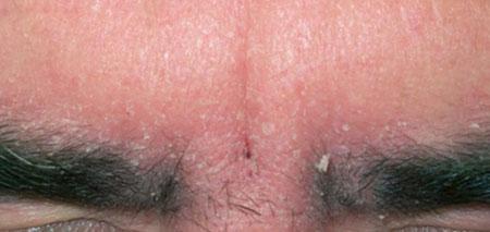 Себорейный дерматит на бровях и лице (фото 2)