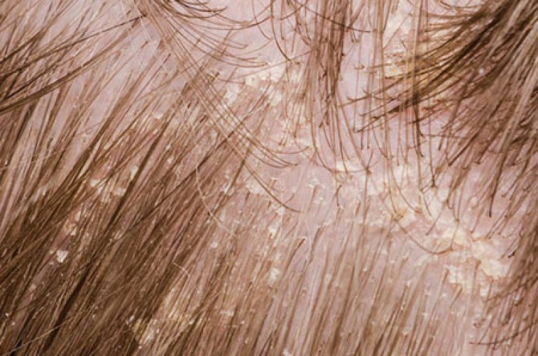 Фото как выглядит себорея