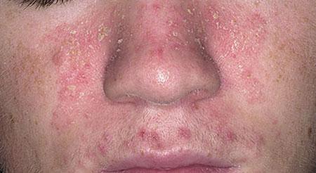 Себорея на лице, фото 5