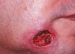 Симптомы вторичного сифилиса