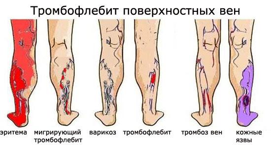 Тромбофлебит нижних конечностей: симптомы и лечение, фото