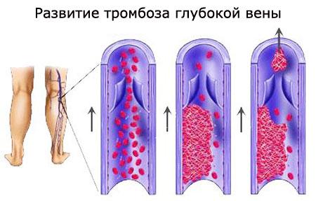 Тромбоз глубоких вен нижних конечностей
