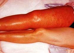 Осложнения тромбоза вен ног