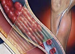 Лечение тромбоза глубоких вен нижних конечностей