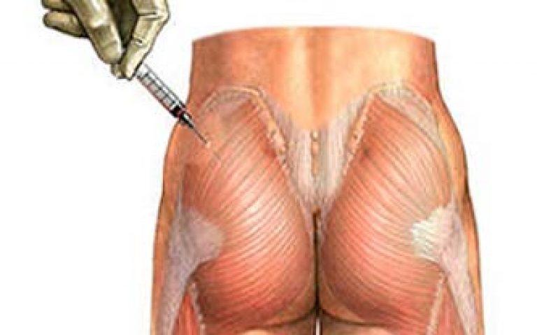 уколы в мышцу при артрозе