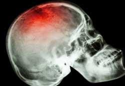 Диагностика и лечение ушибов головы