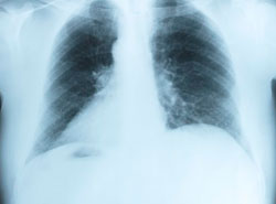 ушиб ребра или перелом - определение на рентгене