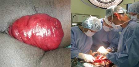 Операция при выпадении прямой кишки, фото 5