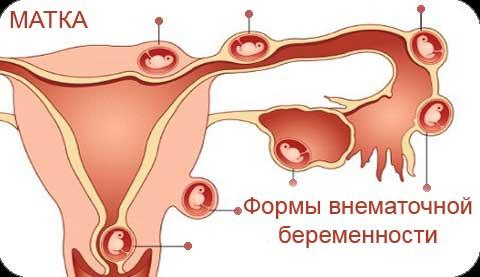 Внематочная беременность: что это такое?