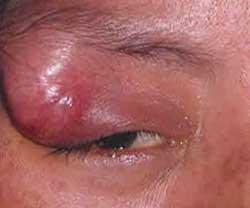Осложнения ячменя, фото 3