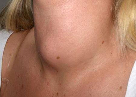 Анализ уровня гормонов щитовидной железы
