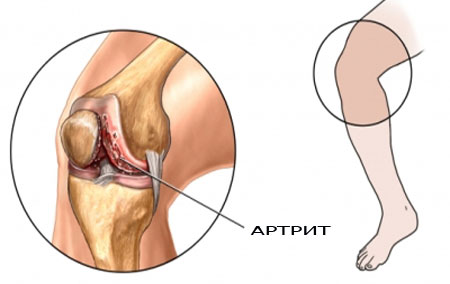 артрозо артрит коленного сустава лечение