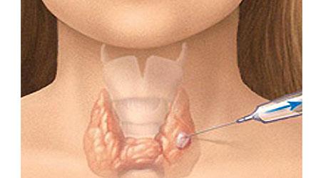 Что такое биопсия щитовидной железы?