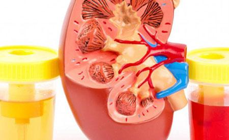 Эритроциты в моче при беременности причины и норма