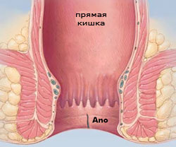 геморрой трещина лечение после операции