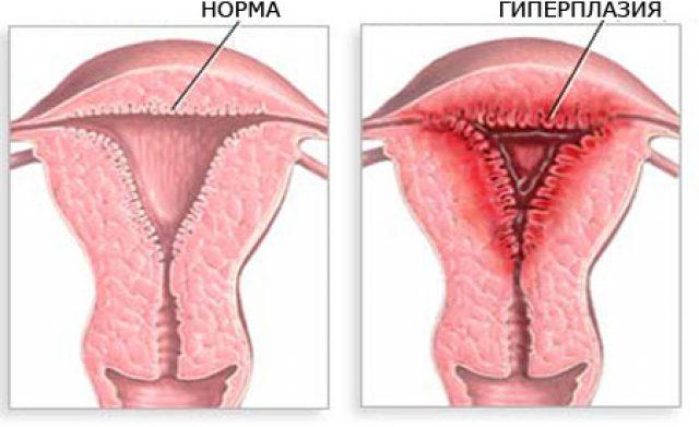 Гиперплазия железистого эпителия эндометрия диета