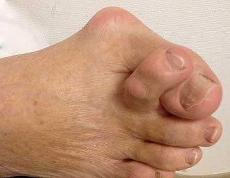 Косточка на пальце ноги - причины лечение в домашних условиях