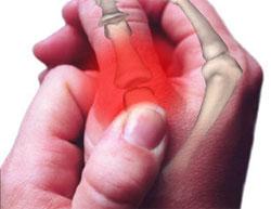 Как отличить перелом от ушиба руки