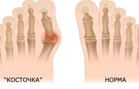 Лечение косточки на ногах народными средствами в домашних условиях